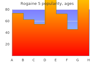 generic rogaine 5 60 ml on line