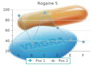 order rogaine 5 pills in toronto